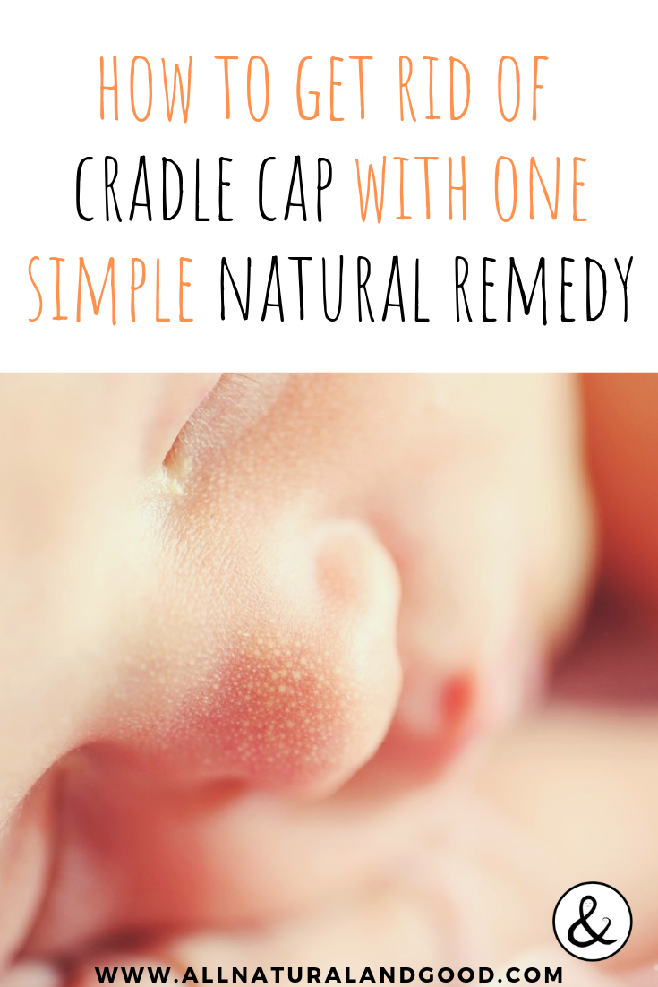 Although unsightly, it is fairly easy to get rid of without using any harsh soaps or products that may irritate baby\'s delicate and sensitive skin. You can get rid of your baby\'s cradle cap once and for all with this one simple and natural remedy! Cradle cap is a pretty common occurrence in babies and even toddlers. #cradlecap #naturalremedy #baby